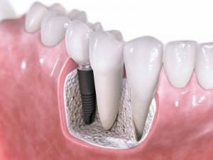 Implantes-dentales-con-cirugia-400x300