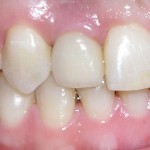 implantes3