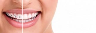 ortodoncia1a